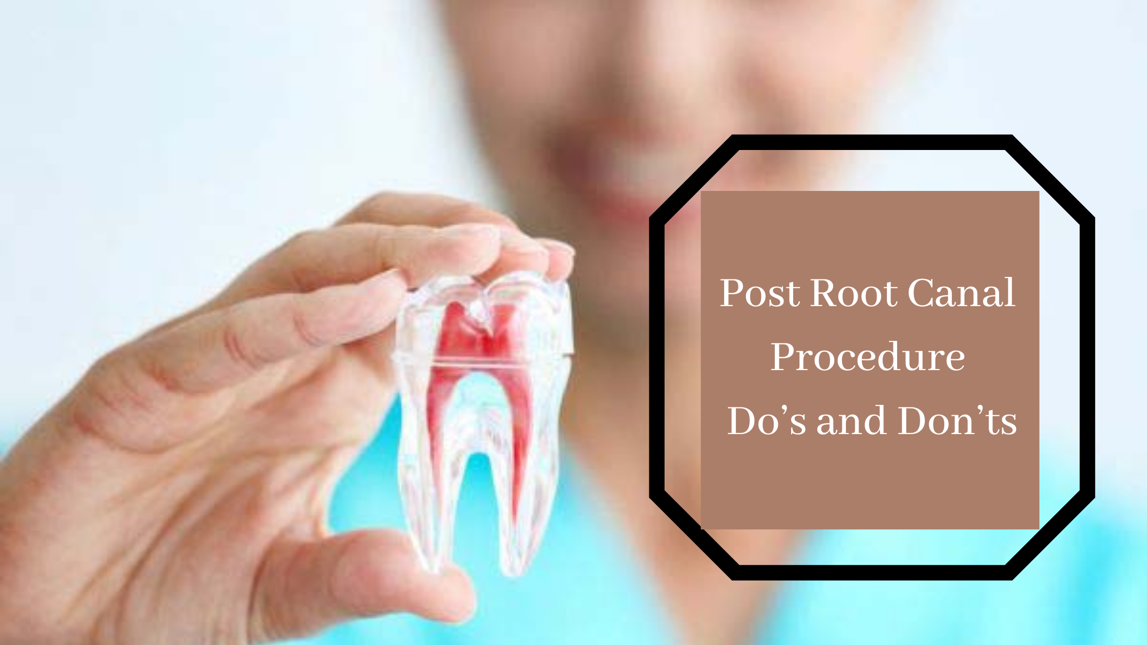 Rootcanal treatment in pune